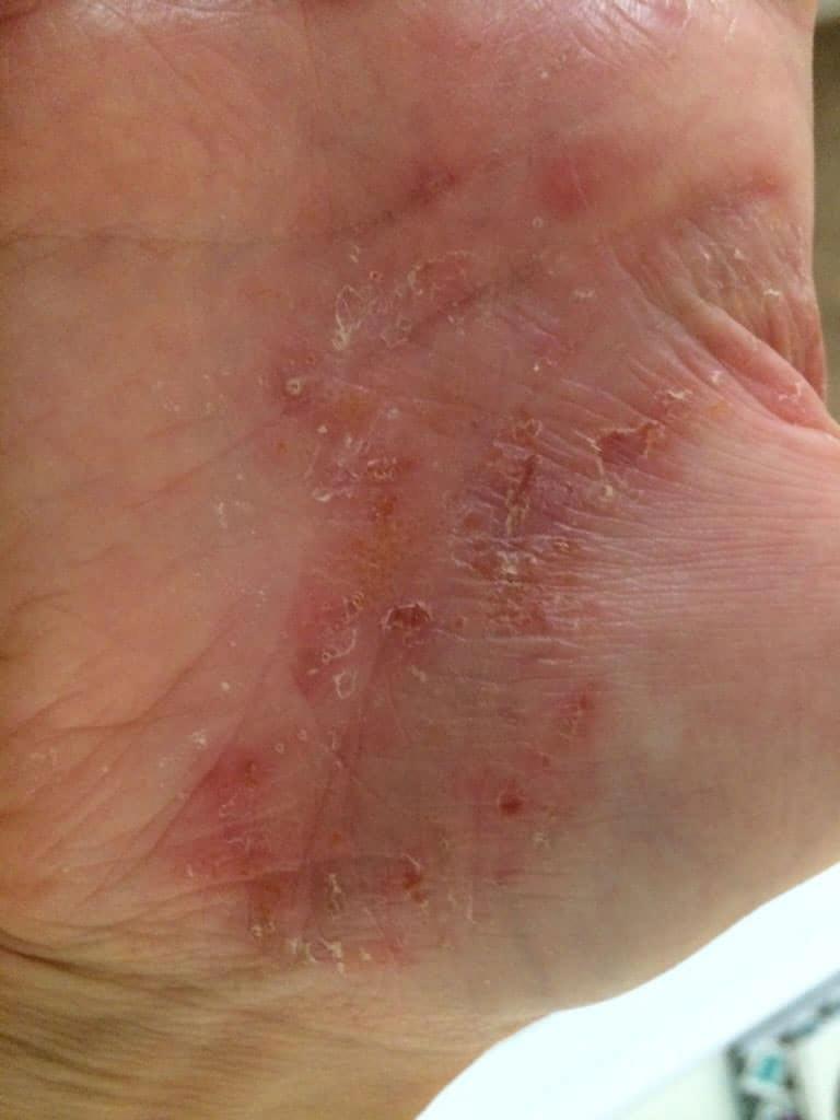 Chiropractic Lyndhurst NJ hand